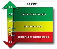 t-score-botdensitometrie